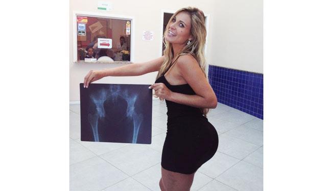 Andressa Urach posa feliz mostrando que o bumbum não tem próteses de silicone - Foto: Divulgação