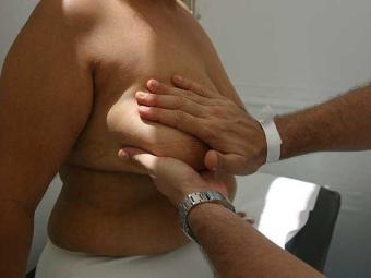 Mastectomia preventiva é indicada em casos extremos - Foto: Xando P./ Ag. A Tarde, em 30/10/2005