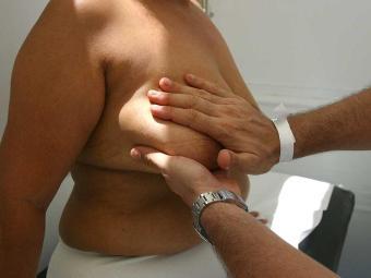 No Brasil, demora-se mais para chegar ao médico e o tamanho do tumor é maior, aponta estudo - Foto: Xando Pereira | Ag. A TARDE