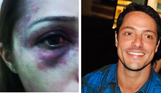 Casal teria discutido no último dia 11, após retornar de um bar - Foto: Arquivo pessoal e Uran Rodrigues | Divulgação