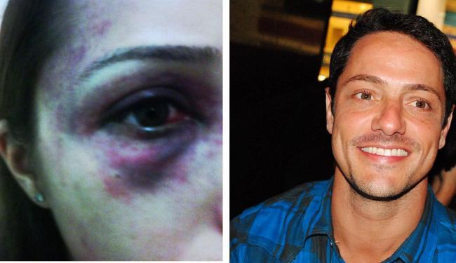 Agressão veio á tona após divulgação de fotos da agressão - Foto: Arquivo pessoal e Uran Rodrigues   Divulgação