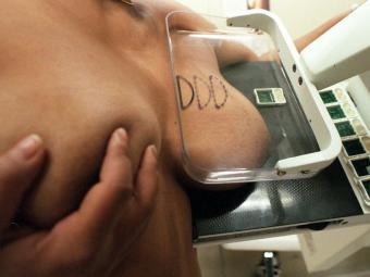 A cirurgia plástica reparadora da mama será gratuita em casos de câncer - Foto: Kathia Tamanaha | AE