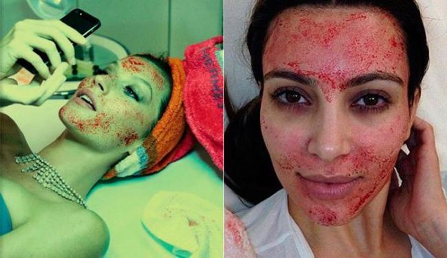 Gisele Bündchen em editorial da Vogue Itália e Kim Kardashian após aplicações do Vampire Facelift - Foto: Reprodução