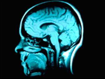 Atividades corriqueiras estimulam os neurônios - Foto: Divulgação
