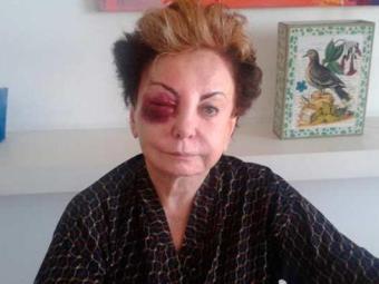 Queda deixou a atriz com um olho roxo - Foto: Arquivo Pessoal
