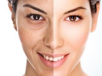Falta de sono ajuda a liberar radicais livres, que envelhecem a pele - Foto: Divulgação | Hype Science