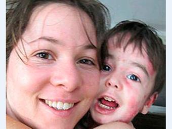 Clara Colker e o filho, que sofre de epidermólise bolhosa não contagiosa - Foto: Reprodução | Facebook