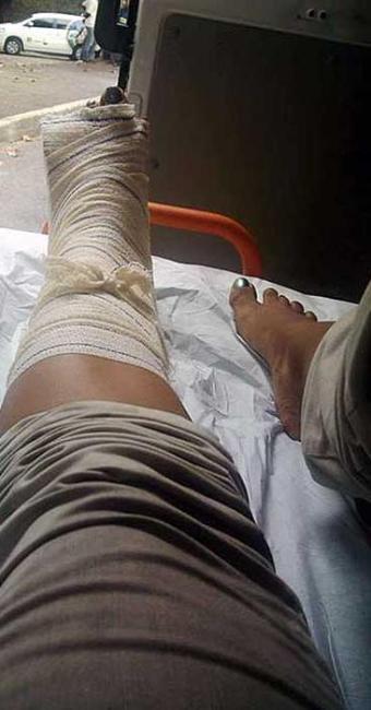 Nilma Santos publicou foto do atendimento após acidente - Foto: Reprodução | Facebook