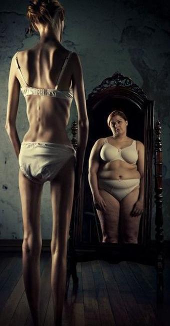 Anorexia está associada a autoimagem equivocada - Foto: Divulgação   Hype Science