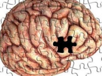 Ilustração simula Mal de Alzheimer - Foto: Divulgação
