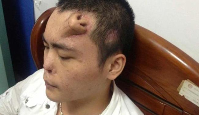 Xiaolian se prepara para o transplante de nariz, que cresceu em sua testa - Foto: Agência Reuters