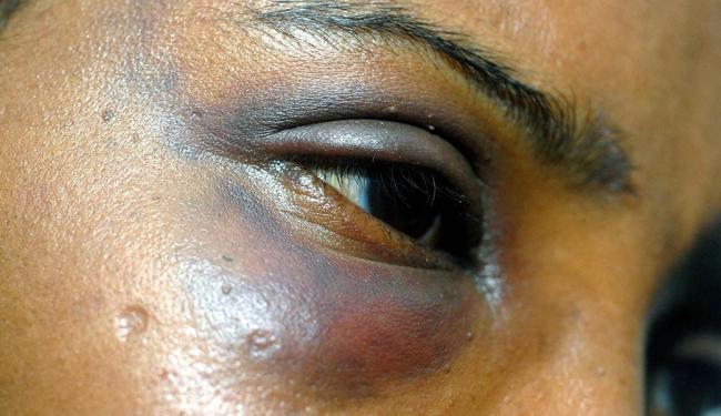 Mulheres jovens e negras são as maiores vítimas de violência no País - Foto: Luiz Tito | Ag. A TARDE