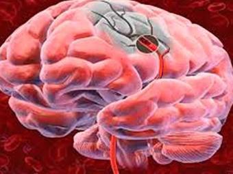 O AVC ocorre quando há entupimento ou rompimento dos vasos que levam sangue ao cérebro - Foto: Divulgação