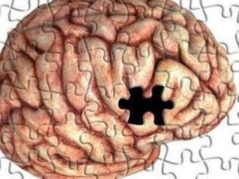 Mal de Alzheimer provoca degeneração dos neurônios - Foto: Divulgação