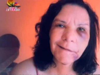 Edileuza ficou com o lado esquerdo do rosto paralisado - Foto: Reprodução