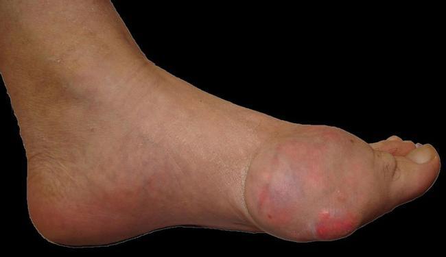 Substância provoca inflamações nas articulações, principalmente nos pés - Foto: Divulgação