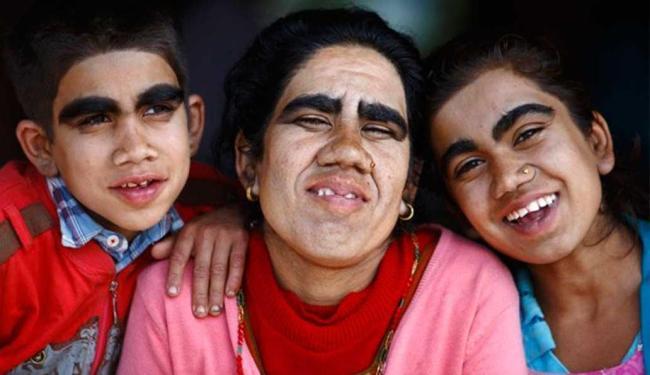 Tratamento diminuiu quantidade de pelos em Devi Budhathouki e os filhos - Foto: Agência Reuters