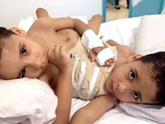 Cirurgia de separação deve ser feita no início de 2014 - Foto: Reprodução | TV Anhanguera