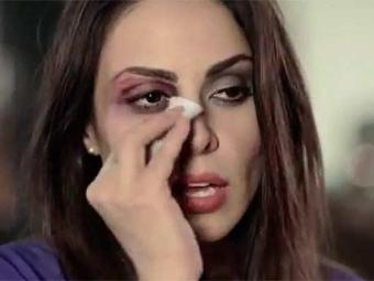 Alinne Rosa participou de um vídeo contra a violência da mulher - Foto: REprodução