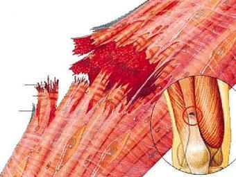 Distenção ocorre quando fibras se rompem no músculo ou tendão - Foto: Reprodução