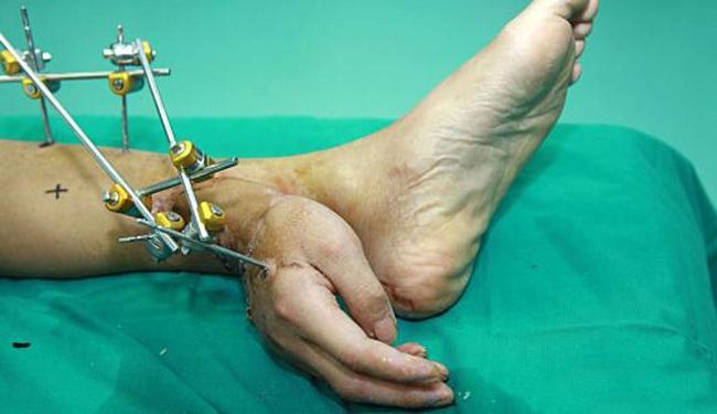 Para não deixar a mão morrer ela foi implantada no tornozelo do paciente - Foto: Divulgação
