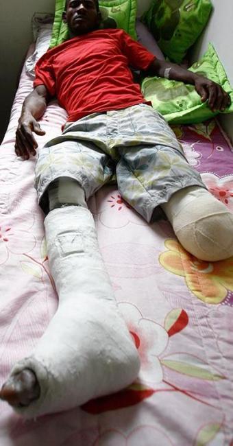 Raimundo de Sousa, 37 anos, recupera-se em casa - Foto: Fernando Amorim | Ag. A TARDE