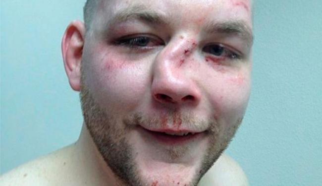 O lutador de MMA amador Andy Eichhloz foi nocauteado por Wade Sauer em combate no último sábado, 4 - Foto: Reprodução