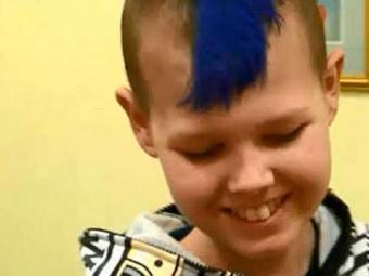 Deryn Blackwell, de 14 anos, recupera-se bem - Foto: Reprodução | BBC Brasil