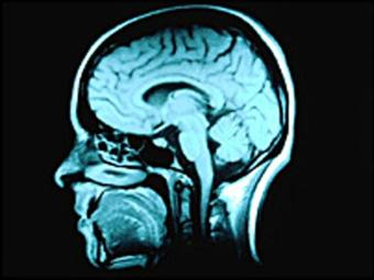 Cérebro humano não é enganado pelos adoçantes artificiais - Foto: Divulgação