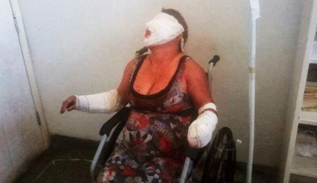 Ranailda teve partes do rosto e braços queimados - Foto: Reprodução/Acorda Ipirá