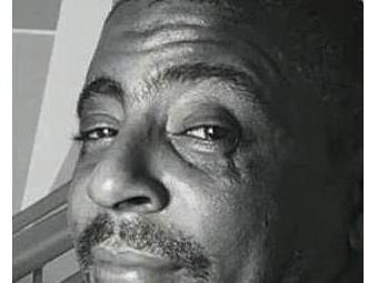 Gilson Carvalho foi baleado na cabeça - Foto: Reprodução | TV Record