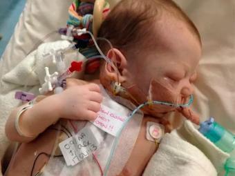 Bebê nasceu com dois buracos no coração - Foto: Reprodução | Caters News
