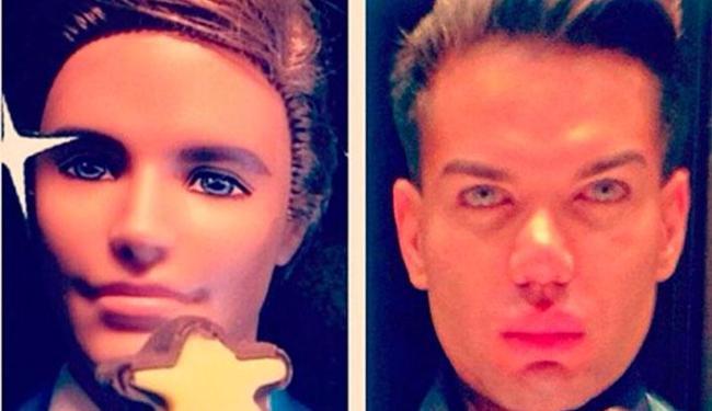 O brasileiro pensa em mais uma cirurgia no nariz, mesmo após susto - Foto: Reprodução   Facebook