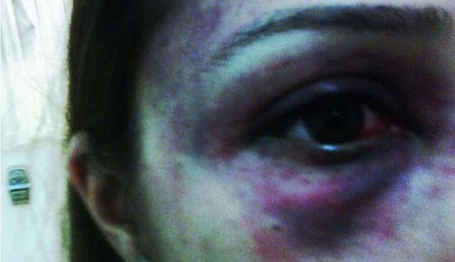 Aida Nunes acusa ex-namorado, o empresário Christiano Rangel, de agressão - Foto: Arquivo Pessoal