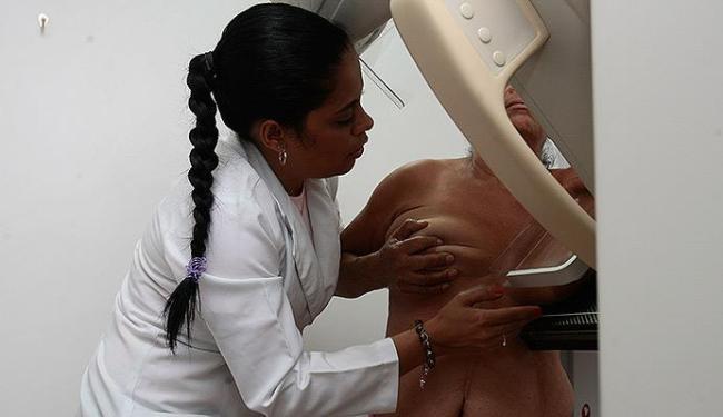 Mamografia deve ser feita em mulheres entre 50 e 69 anos - Foto: Agência A TARDE