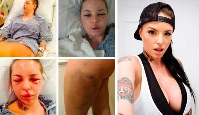 Atriz mostrou o rosto e as pernas após ser agredida pelo lutador de MMA - Foto: Reprodução | Facebook