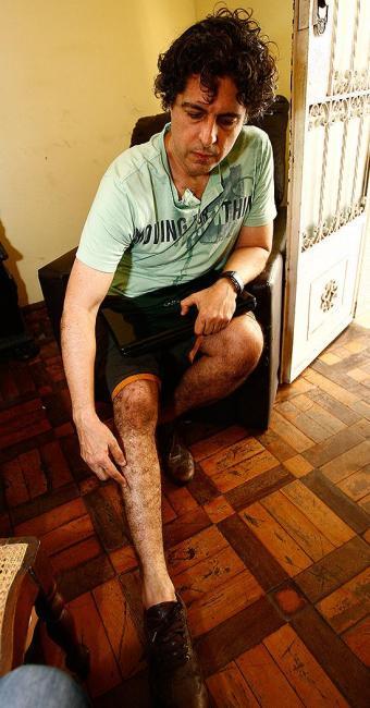 Artur, que levou 45 picadas, mostra ferimentos na perna - Foto: Margarida Neide | Ag. A TARDE