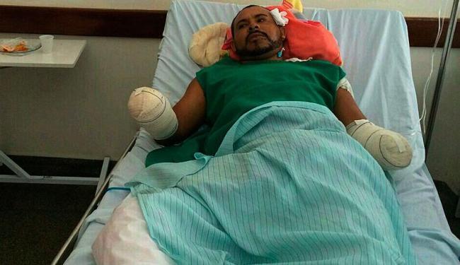 Pedreiro recebeu alta na quarta-feira, 17. - Foto: Polícia Civil de Pilão Arcado