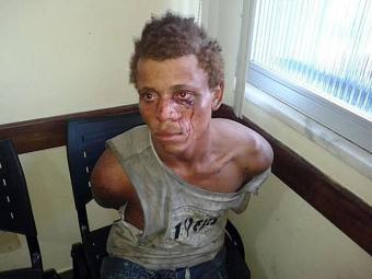 Tiago foi identificado por foto e espancado por moradores do local - Foto: Aldo Matos | Acorda Cidade