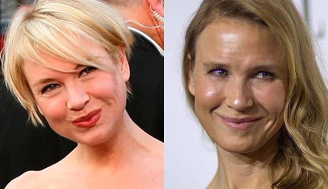 A atriz em 2008, antes de procedimentos radicais, e agora - Foto: AFP e Reuters