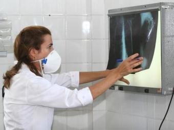O Brasil tem 6 milhões de casos de tuberculose todo ano e mais de 1 milhão de mortes - Foto: Agecom Bahia