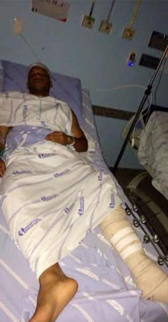 Saulo foi atingido na perna - Foto: Cidadão Repórter