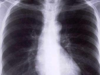 Países do bloco concentram 50% dos casos de tuberculose do mundo - Foto: Divulgação