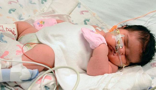 Criança nasceu no último dia 1º na cidade do Colorado, nos Estados Unidos - Foto: Children's Hospital Colorado, Tia Brayman | AP