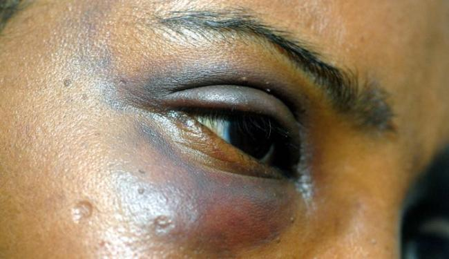 Espaço irá abrigar mulheres vítimas de violência e seus filhos - Foto: Luiz Tito | Ag. A TARDE | 04/04/2011