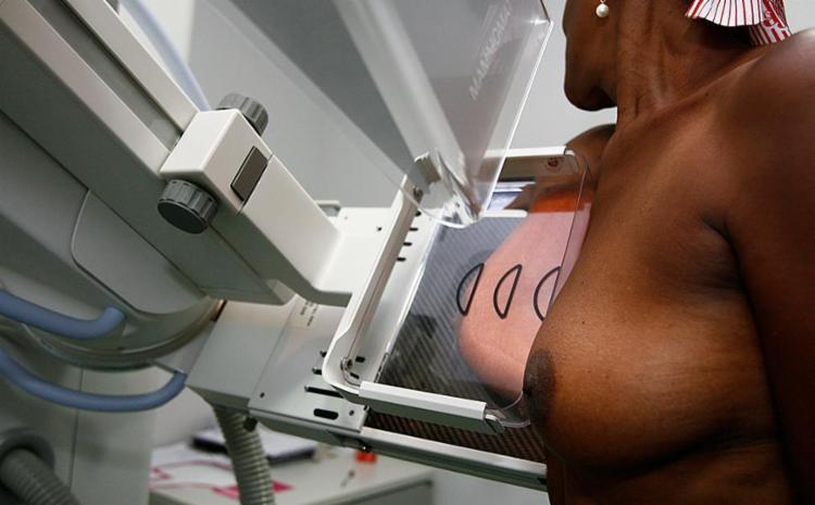 Brasil registra 58 mil casos de câncer de mama por ano e a maioria é detectada com lesões muito grandes - Foto: Joá Souza | Ag. A TARDE