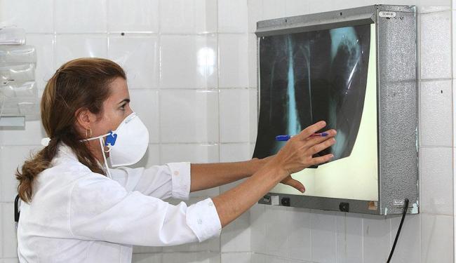 O tempo de análise para diagnosticar a tuberculose passou de oito horas para apenas dois minutos - Foto: Carol Garcia | Agecom Bahia