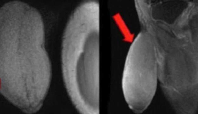Órgão sexual do garoto tinha o diâmetro de bola de futebol americano - Foto: Journal of Sexual Medicene