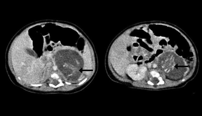 Tomografia publicada pelo jornal mostra espinhas dorsais dos dois fetos - Foto: Reprodução | HKMJ