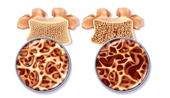 Osso com osteoporose, à direita, é mais frágil que o normal - Foto: Divulgação